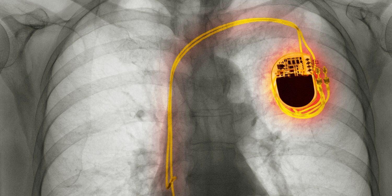 širdies stimuliatoriaus patikrinimas
